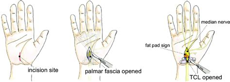 [pdf] Carpal Tunnel Release Through Mini Transverse Approach .