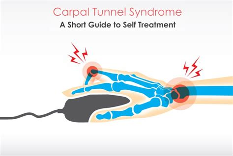 [pdf] Carpal Tunnel Syndrome Self Treatment              .