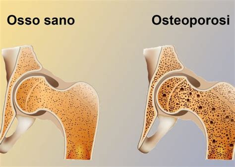 [click]cura Dell Osteoporosi - Lios It.