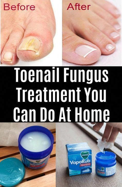 Diy Nail Fungus Cure Remedies