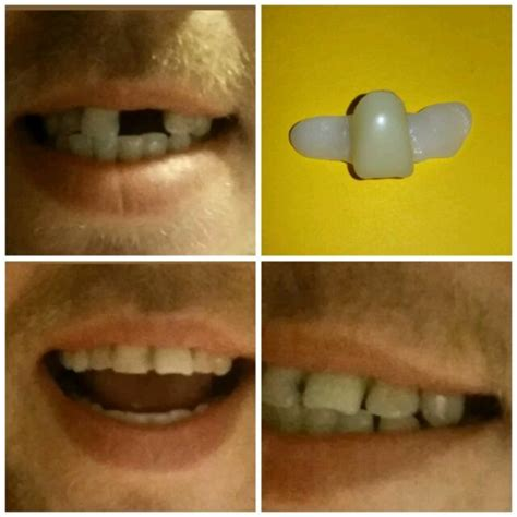 Diy Temporary Tooth Replacement
