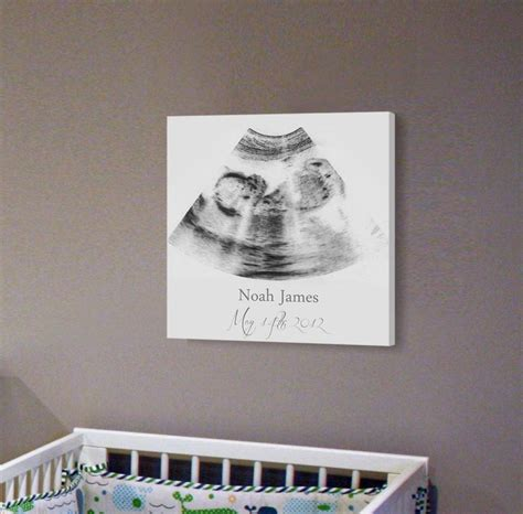 Diy-Ultrasound-Picture-On-Canvas