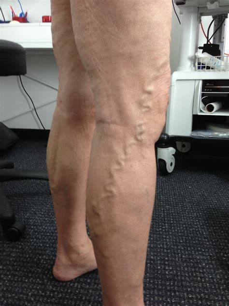 Everett Clinic Varicose Veins And For Decubitus And Varicose Ulcers And Debridement