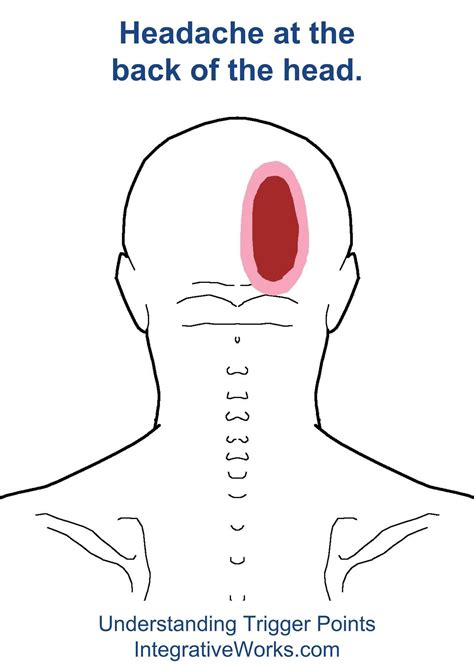 Head Pain Back Of Head Both Sides And Hip Pain Femoral Head