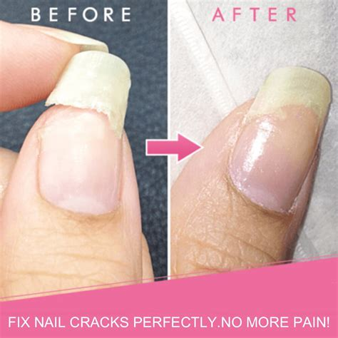 How To Fix A Cracked Fingernail