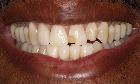 How To Fix Cracked Veneer Tooth