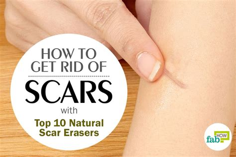 How To Get Rid Of Burn Marks On Face
