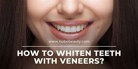 How To Make Veneers Whiter