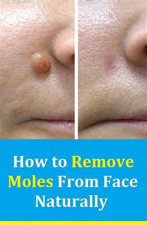 How To Remove Colorless Moles