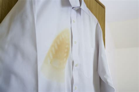 How To Remove Scorch Marks From Clothes