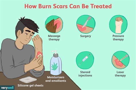 How To Treat Burn Marks