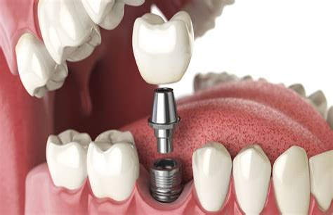 How Do Surroundig Teeth React To A Single Implant