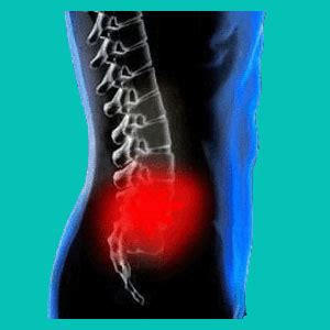 How To Keep A Herniated Disc From Flaring Up And Icd10 Herniation Thoracic Spine