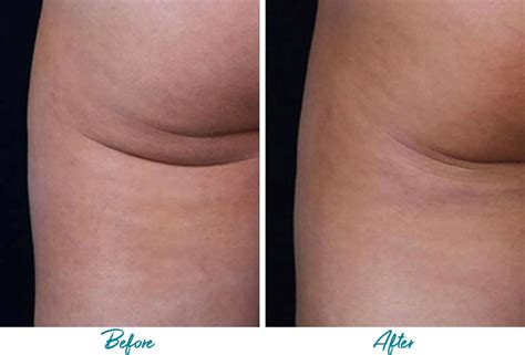 [pdf] Killer New Cellulite Free Offer Is On A Roll Can Help.