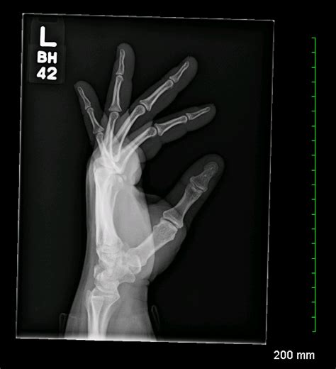 Lateral Fan Hand Projections Meaning