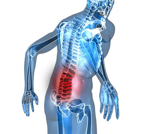 Low Back Pain Common Causes And Low Back Pain During Luteal Phase
