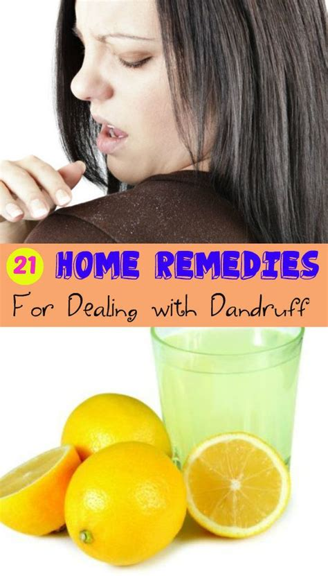 [pdf] Natural Treatments For Dandruff - Home Remedies Log.