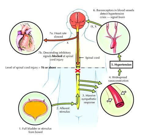 Parasympathetic Nervous System Autonomic Dysreflexia