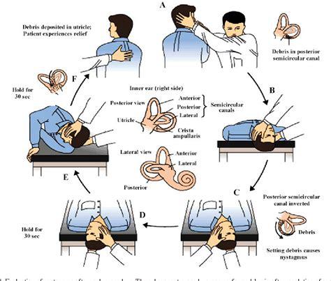 Positional Vertigo Symptoms Treatment And Dizzy But Not Vertigo