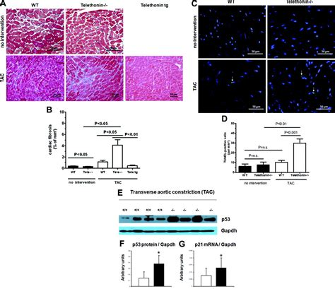 [pdf] Telethonin Deficiency Is Associated With Maladaptation To .