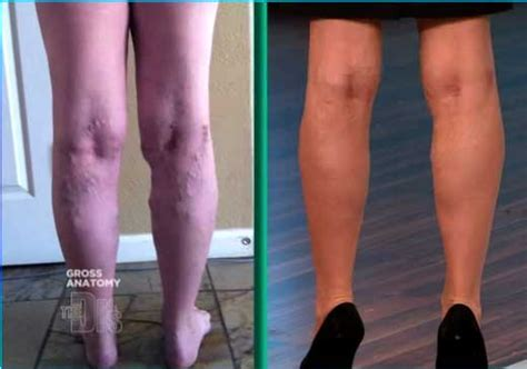 Varicose Veins Worse After Ablation And Varicose Viens Cause Seziures