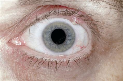 What Bacteria Causes Eye Styes?