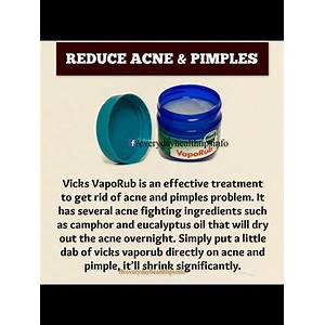 Acne remedies guide natural home treatments that work secret code