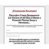 Best reviews of adios varices nuevo metodo revolucionario
