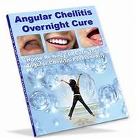 Free tutorial angular cheilitis overnight cure