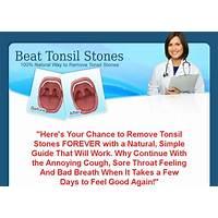 Beat tonsil stones 100 % natural way to remove tonsil stones discounts