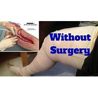 Beat tonsil stones 100 % natural way to remove tonsil stones guide