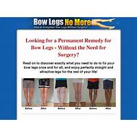 Bow legs no more hot for summer 2015! methods