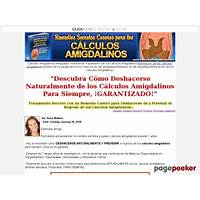 Calculos amigdalinos (tonsil stones remedies immediately