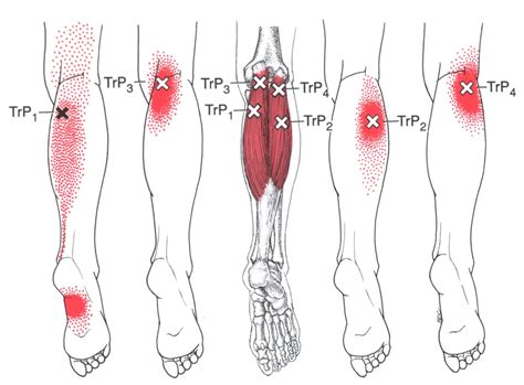 Calf Muscle Trigger Points