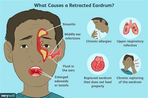 Can Blocked Ears Cause Tension Headaches