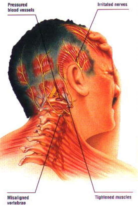 Can Neck Muscle Strain Cause Headaches
