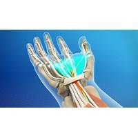 Carpal tunnel syndrome, hand wrist pain system that works