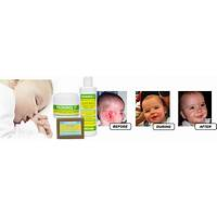 Cure child eczema coupons
