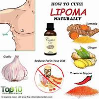 Cure lipoma how to naturally cure and prevent lipoma lumps work or scam?