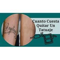 Deshacerse de los tatuaje naturalmente get rid tattoo spanish free tutorials