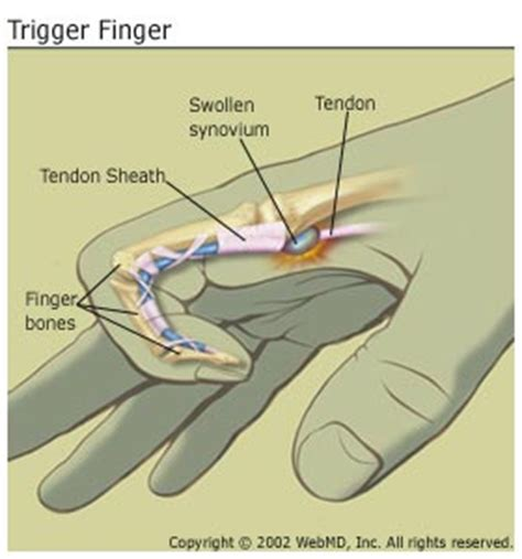 Does Diabetes Cause Trigger Finger