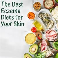 Coupon for eczema diet secrets