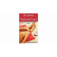 Eczema treatment solution for adults & children ebook & video series secrets