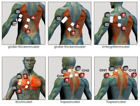 Ems Trigger Points