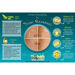 Fast home scar removal the scar solution immediately