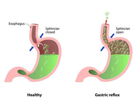 Foods That Trigger Stomach Acid