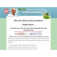 Full urticaria cure by dr gary m d converts 1:34 promotional codes