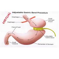 Gastric band hypnotherapy that works