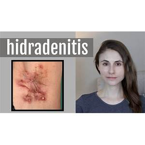 Get rid of hidradenitis suppurativa naturally and fast coupons