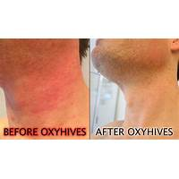 Get rid of hives urticaria hives treatment new inexpensive